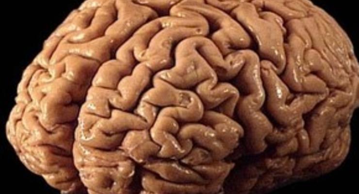 Ученые: Грамотность изменяет структуру мозга