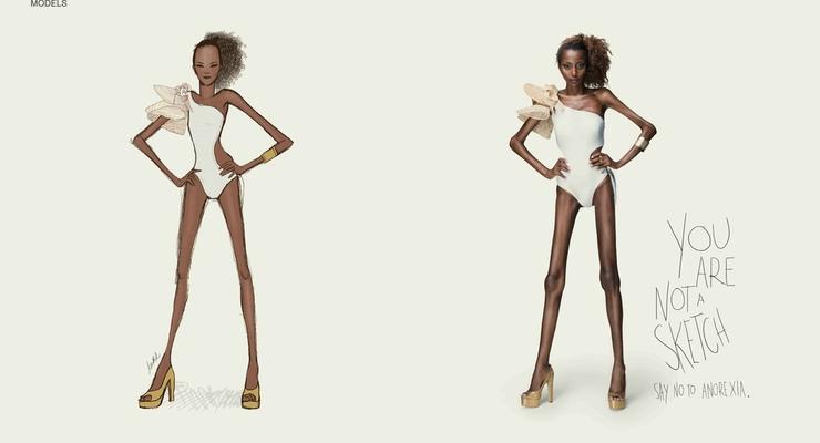 Рекламная кампания против анорексии шокировала Бразилию (ФОТО)