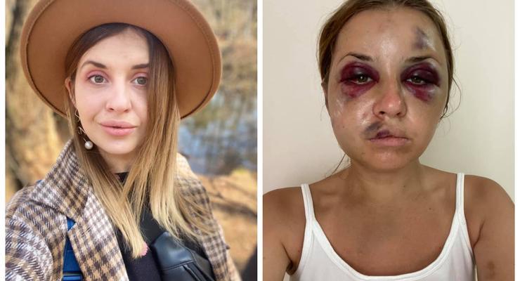 """Умер насильник, напавший на журналистку в поезде """"Киев-Мариуполь"""""""