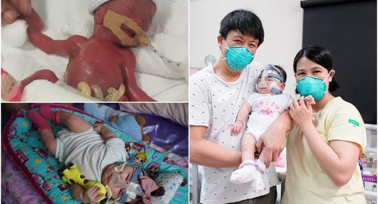 В Сингапуре из больницы выписали девочку, которая при рождении весила как яблоко